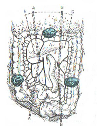 при раке ободочной кишки