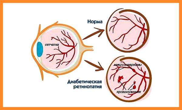 Лечение ухудшения зрения при диабете