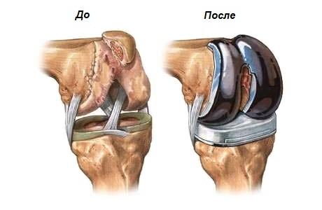 Замена тазобедренного сустава цена в москве болит вена за коленом